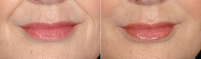 Woman's face, Before and After Restylane Treatment, lips, female patient 3