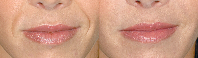 Woman's face, Before and After Restylane Treatment, lips, female patient 4