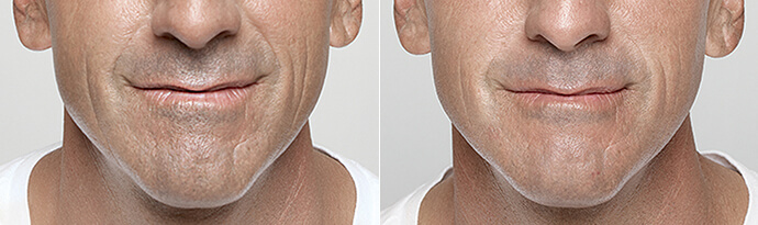 Male face, Before and After Restylane Treatment, lips, male patient 5