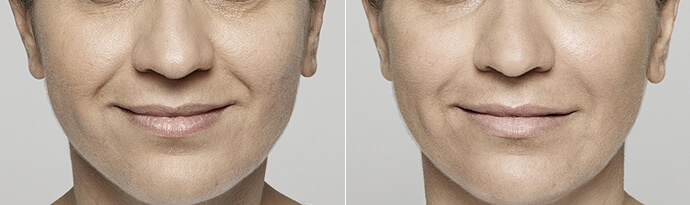 Male face, Before and After Restylane Treatment, lips, male patient 6