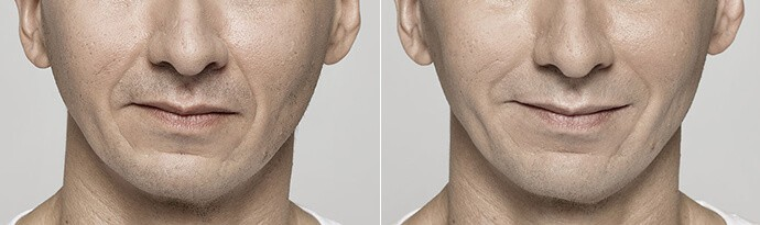Male face, Before and After Restylane Treatment, lips, male patient 7