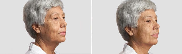 Woman's face, Before and After Silhouette InstaLift Treatment, right side oblique view, female patient 2