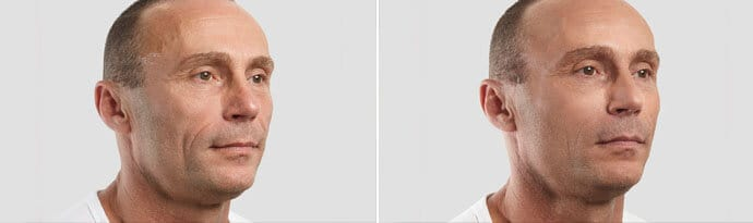 Male face, Before and After Silhouette InstaLift Treatment, right side oblique view, male patient 4