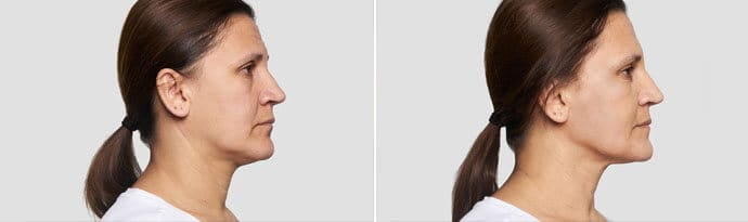 Woman's face, Before and After Silhouette InstaLift Treatment, right side view, female patient 5