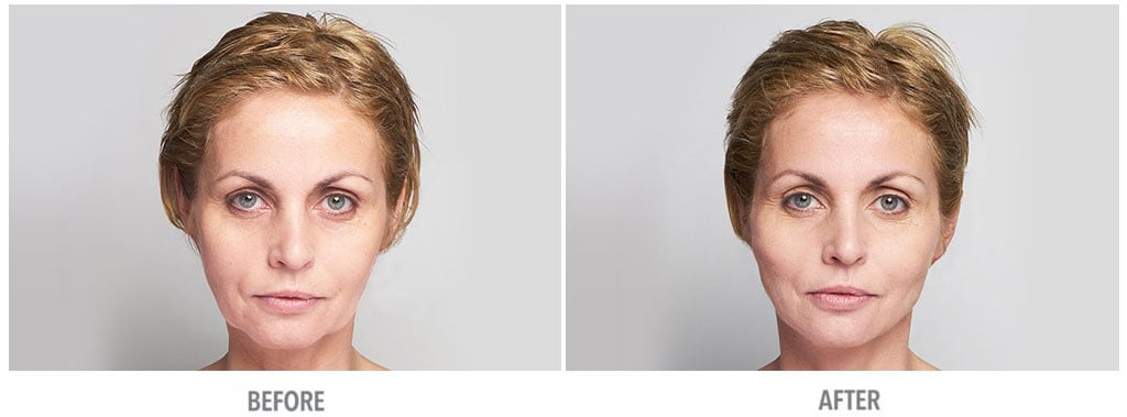 Woman's face, Before and After Silhouette InstaLift Treatment, front view, female patient 1