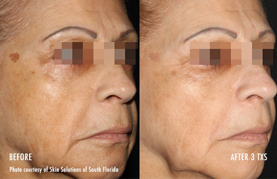 Woman's face, Before and After Picogenesis Treatment, right side oblique view, female patient 3