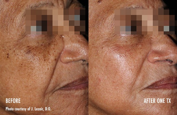 Woman's face, Before and After Picogenesis Treatment, right side oblique view, female patient 10