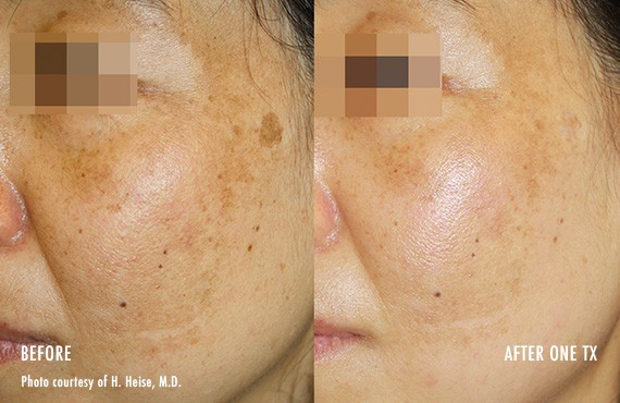 Woman's face, Before and After Picogenesis Treatment, left side oblique view, female patient 4