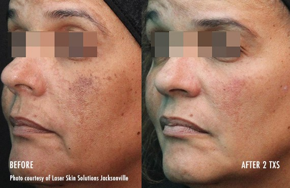 Woman's face, Before and After Picogenesis Treatment, left side oblique view, female patient 5