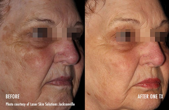 Woman's face, Before and After Picogenesis Treatment, right side oblique view, female patient 6