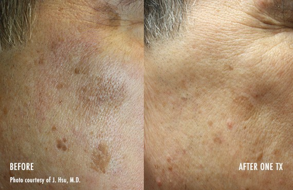 Male face, Before and After Picogenesis Treatment, right side oblique view, male patient 7