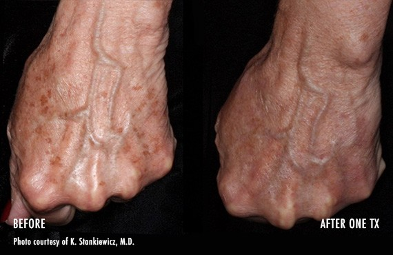 Before and After Picogenesis Treatment, hands, front view, male patient 8