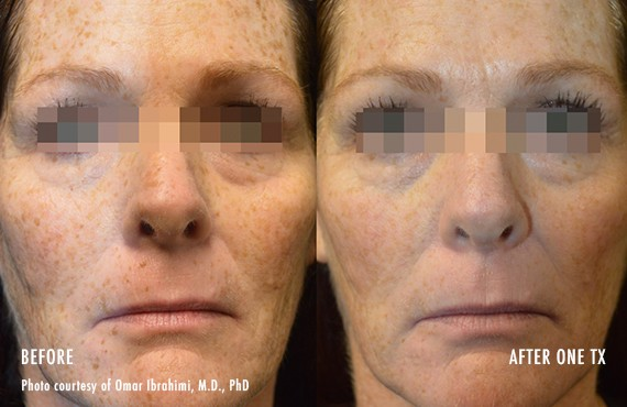 Woman's face, Before and After Picogenesis Treatment, front view, female patient 9