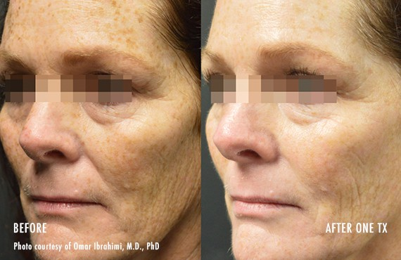 Woman's face, Before and After Picogenesis Treatment, left side oblique view, female patient 9