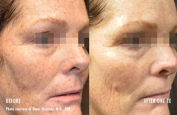 Woman's face, Before and After Picogenesis Treatment, right side oblique view, female patient 9