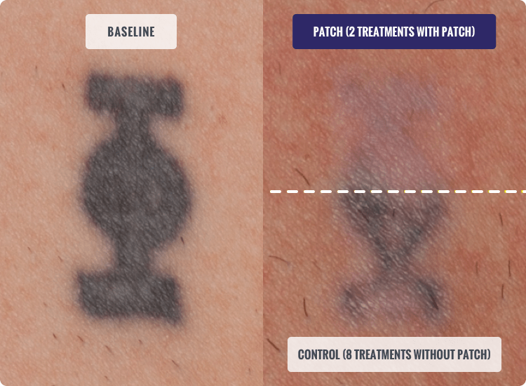 Before and After TATTOO REMOVAL Treatment, patient 1