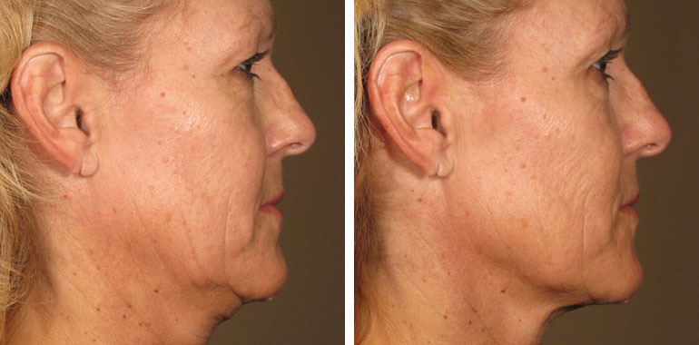 Woman's face, Before and After ULTHERAPY Treatment, right side view, female patient 1