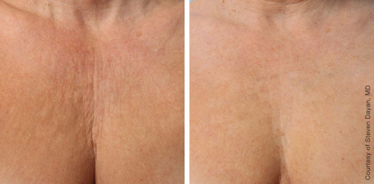 Woman's neck, Before and After ULTHERAPY Treatment, neck and decolte area, front view, female patient 10