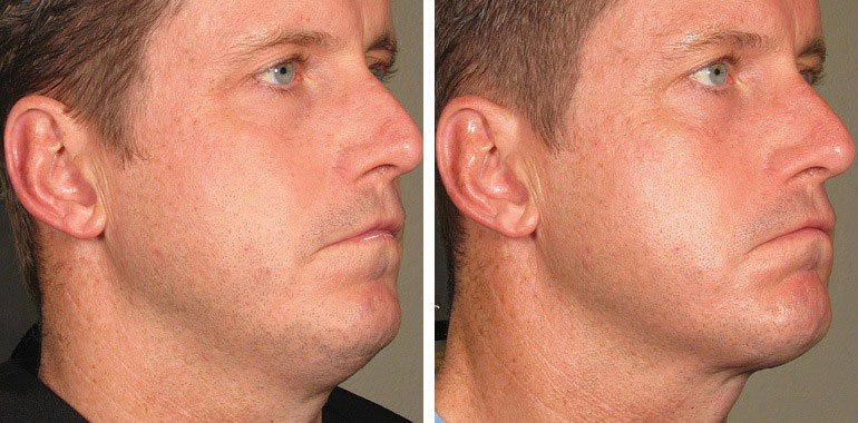 Male face, Before and After ULTHERAPY Treatment, right side oblique view, male patient 2