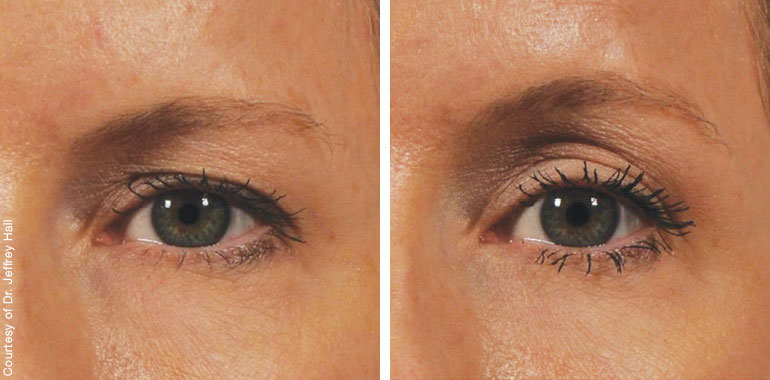 Woman's face, Before and After ULTHERAPY Treatment, eye, female patient 3