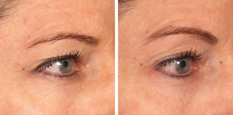 Woman's face, Before and After ULTHERAPY Treatment, eye, female patient 4