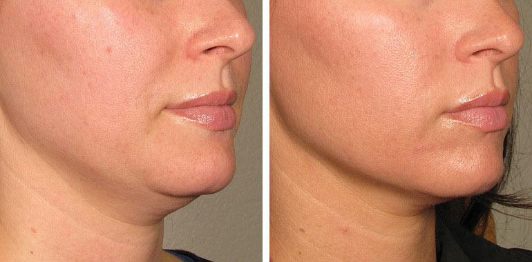 Woman's face, Before and After ULTHERAPY Treatment, chin and lips,right side oblique view, female patient 5