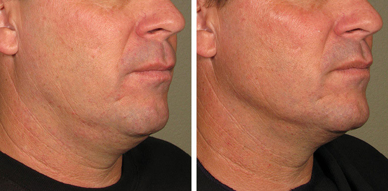 Male face, Before and After ULTHERAPY Treatment, chin and lips,right side oblique view, male patient 6
