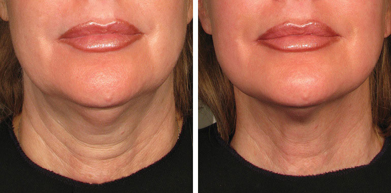 Woman's neck, Before and After ULTHERAPY Treatment, neck, chin and lips, front view, female patient 7