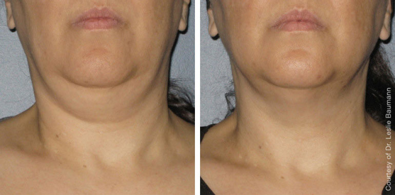 Woman's neck, Before and After ULTHERAPY Treatment, neck, chin and lips, front view, female patient 8