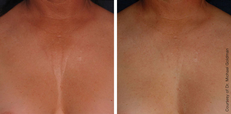 Woman's neck, Before and After ULTHERAPY Treatment, neck and decolte area, front view, female patient 9