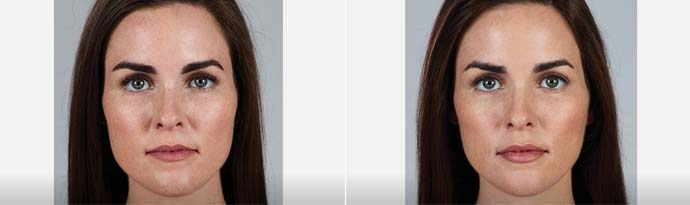 Woman's face, Before and After Juvéderm Volbella Treatment, front view, female patient 1