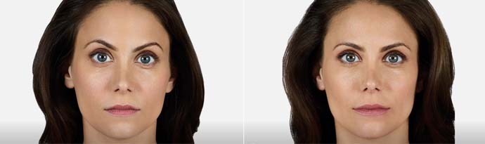 Woman's face, Before and After Juvéderm Volbella Treatment, front view, female patient 2
