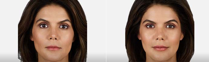 Woman's face, Before and After Juvéderm Volbella Treatment, front view, female patient 4