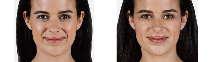 Woman's face, Before and After vollure Treatment, front view, female patient 1
