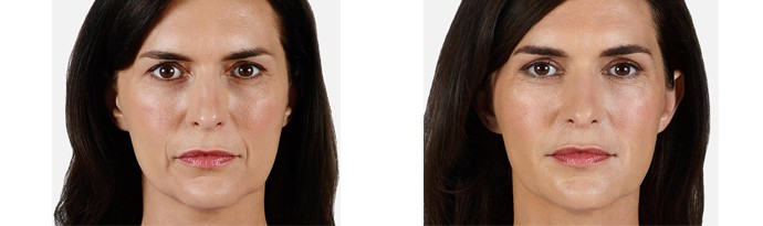 Woman's face, Before and After vollure Treatment, front view, female patient 2