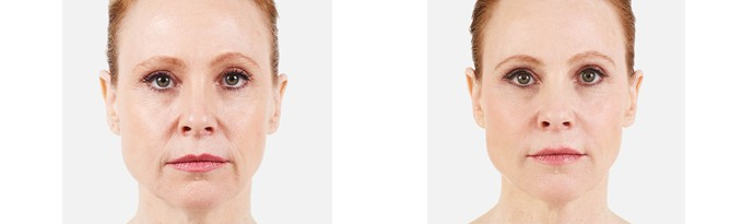 Woman's face, Before and After vollure Treatment, front view, female patient 3