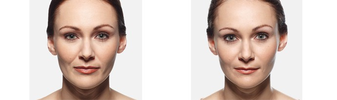 Woman's face, Before and After vollure Treatment, front view, female patient 5