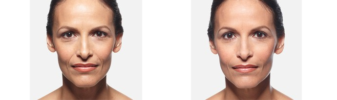 Woman's face, Before and After vollure Treatment, front view, female patient 6