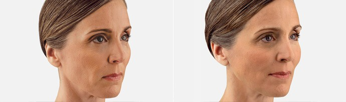 Woman's face, Before and After JUVÉDERM VOLUMA Treatment, right side oblique view, female patient 1