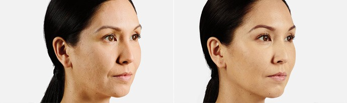Woman's face, Before and After JUVÉDERM VOLUMA Treatment, right side oblique view, female patient 2