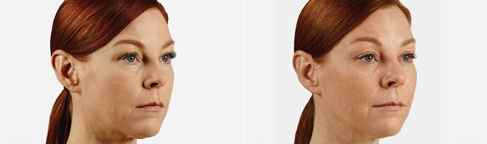 Woman's face, Before and After JUVÉDERM VOLUMA Treatment, right side oblique view, female patient 3