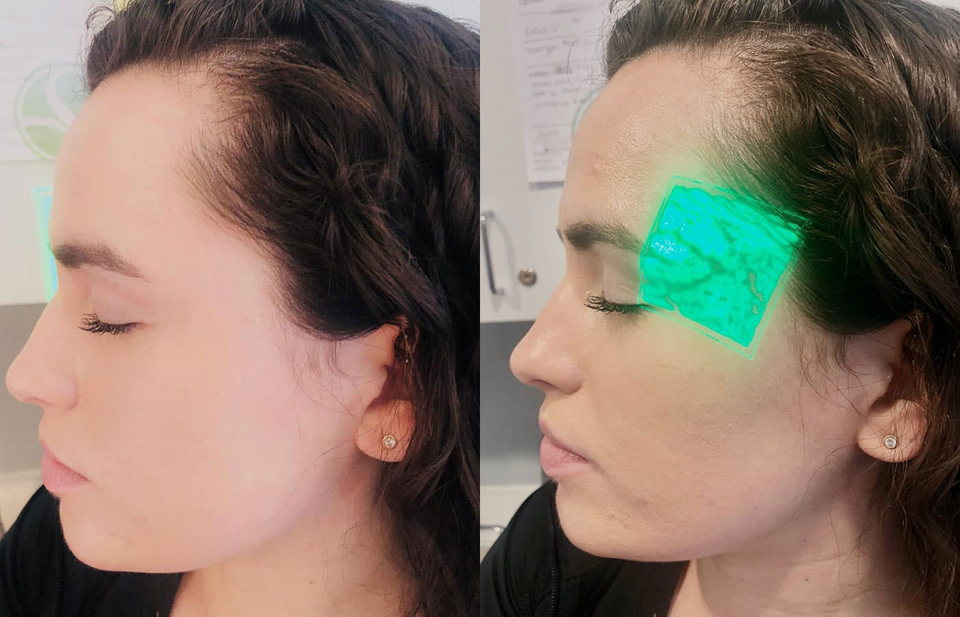 Woman's face, before and after Accuvein treatment, side view