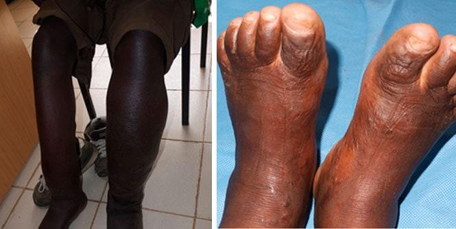 Dr. Margo, patient legs before treatment