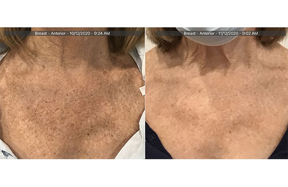 Woman's face, Before and After Picogenesis Treatment, right side oblique view, female patient 11