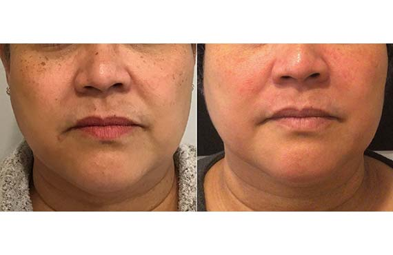 Woman's face, Before and After, female patient 12